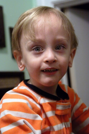 Recovering From RSV and Pneumonia, One YearLater